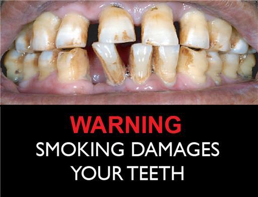 Smoking Teeth Melrose MA